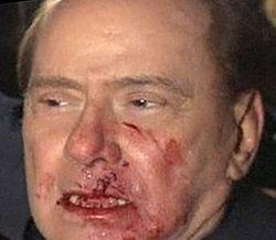 Italian Prime Minister Silvio Berlusconi attacked in Milan