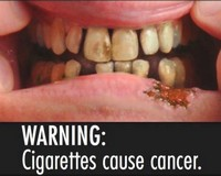 Reminder on pictorial health warnings on cigarette packets