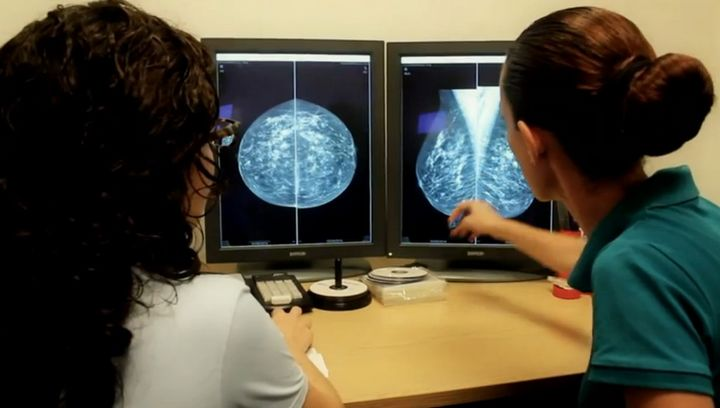 235 breast cancers detected by screening where no symptoms were present